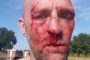 """POBITO dziennikarza Gazety Wyborczej! """"Grożono śmiercią"""""""