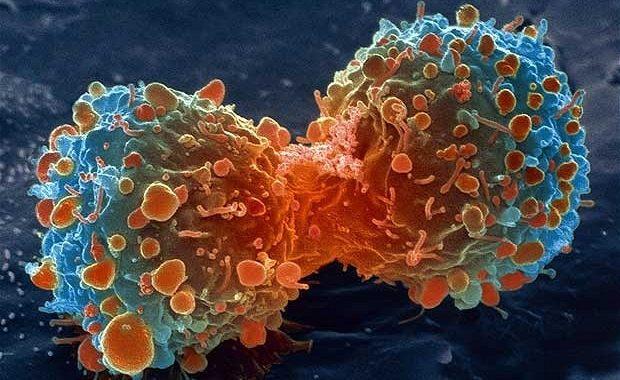Oto 5 objawów raka, które przeciętny człowiek totalnie ignoruje!