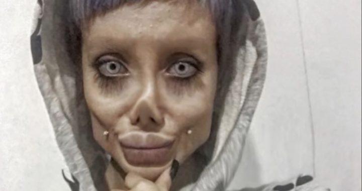 Dramat kobiety, która chciała wyglądać jak Angelina Jolie! Trafiła do więzienia za (…)!