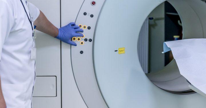 Lekarze byli pewni, że pacjent choruje na raka! Osłupieli kiedy zobaczyli zdjęcia jego mózgu!