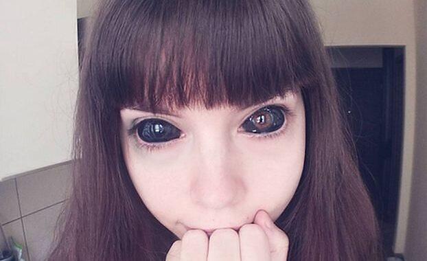 Wytatułowała gałki oczne. Częściowo straciła wzrok. Teraz błaga o pomoc.